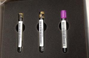 DNA-Tests
